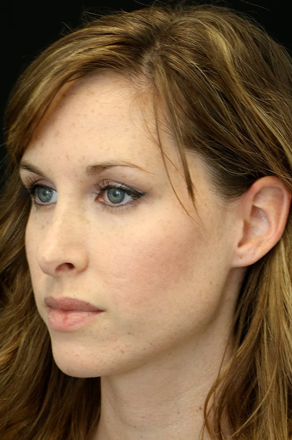 Revision Rhinoplasty Gallery - Patient 18726371 - Image 3