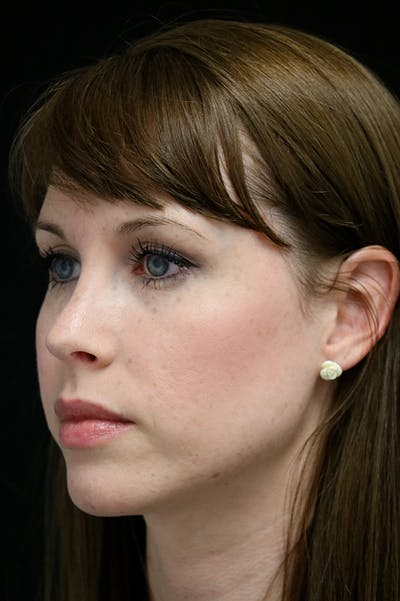 Revision Rhinoplasty Gallery - Patient 18726371 - Image 4
