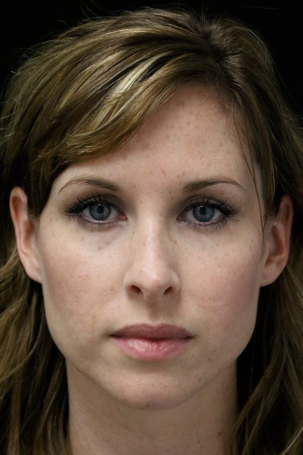 Revision Rhinoplasty Gallery - Patient 18726371 - Image 5