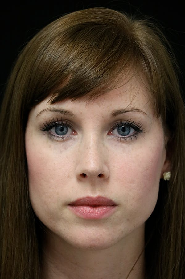 Revision Rhinoplasty Gallery - Patient 18726371 - Image 6