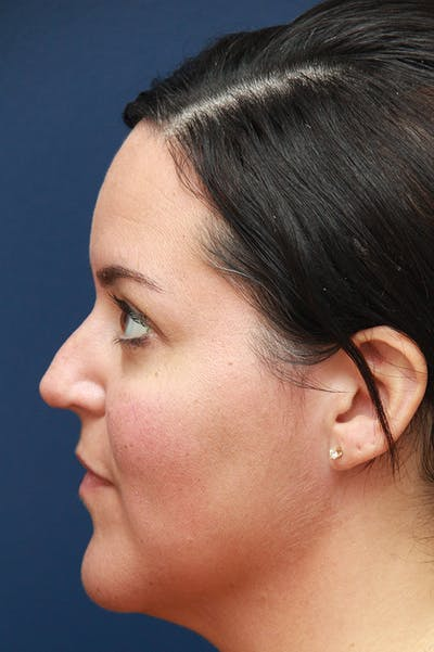 Revision Rhinoplasty Gallery - Patient 24222643 - Image 1