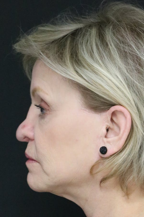 Revision Rhinoplasty Gallery - Patient 24222644 - Image 1