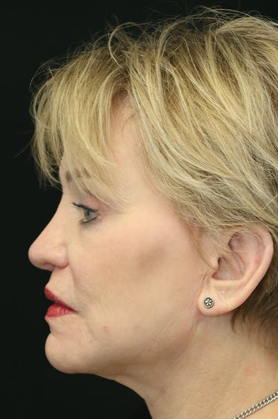 Revision Rhinoplasty Gallery - Patient 24222644 - Image 2