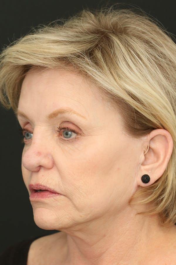 Revision Rhinoplasty Gallery - Patient 24222644 - Image 3