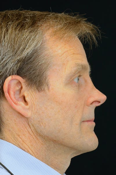 Revision Rhinoplasty Gallery - Patient 24222645 - Image 1