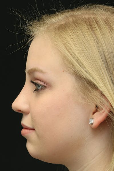 Revision Rhinoplasty Gallery - Patient 24222646 - Image 2