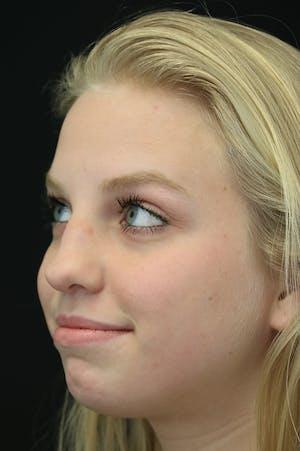 Revision Rhinoplasty female side view