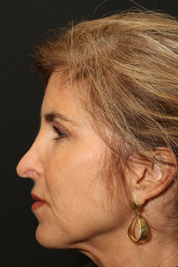 Revision Rhinoplasty Gallery - Patient 24222648 - Image 1