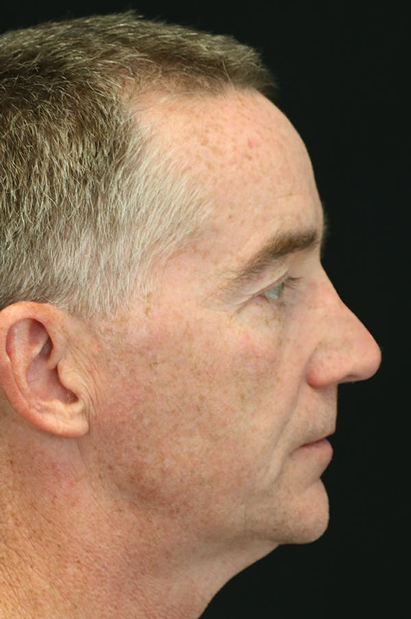 Revision Rhinoplasty Gallery - Patient 24222647 - Image 1