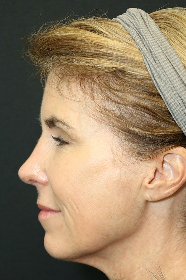 Revision Rhinoplasty Gallery - Patient 24222648 - Image 2