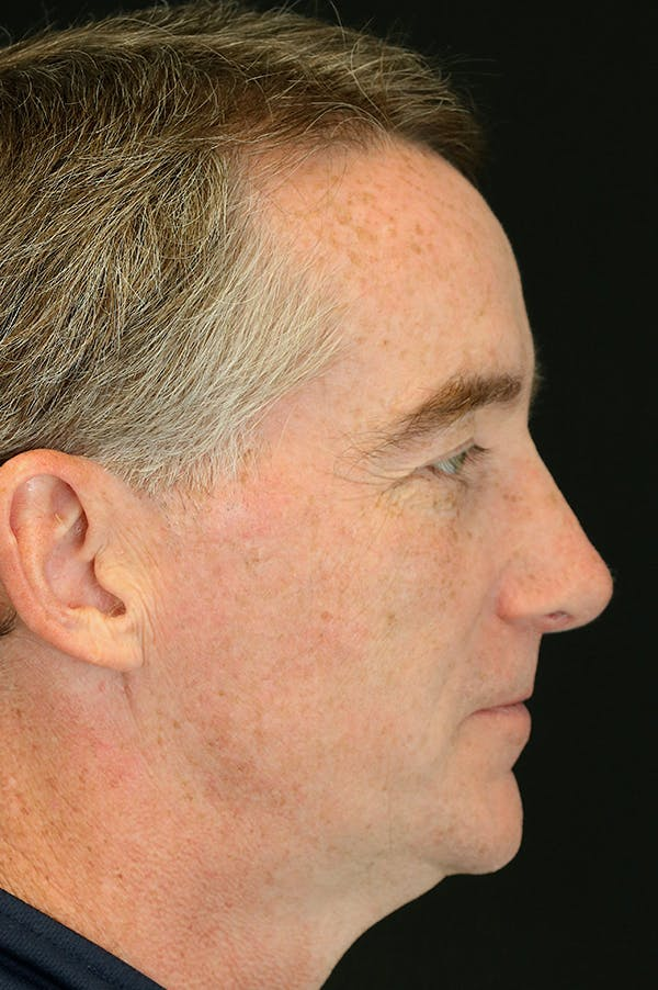 Revision Rhinoplasty Gallery - Patient 24222647 - Image 2