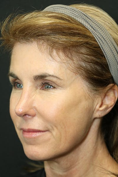 Revision Rhinoplasty Gallery - Patient 24222648 - Image 4