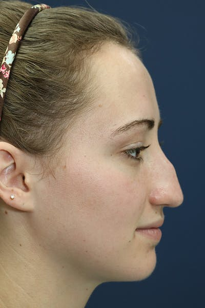 Revision Rhinoplasty Gallery - Patient 24222649 - Image 1