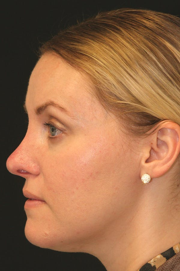 Revision Rhinoplasty Gallery - Patient 24222650 - Image 1