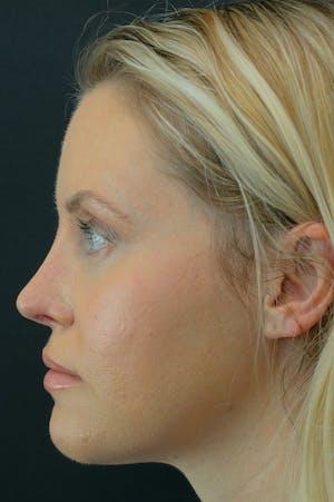 Revision Rhinoplasty female