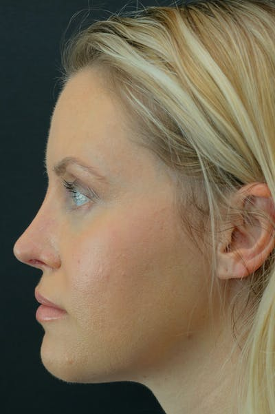 Revision Rhinoplasty Gallery - Patient 24222650 - Image 2