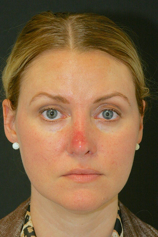 Revision Rhinoplasty Gallery - Patient 24222650 - Image 3