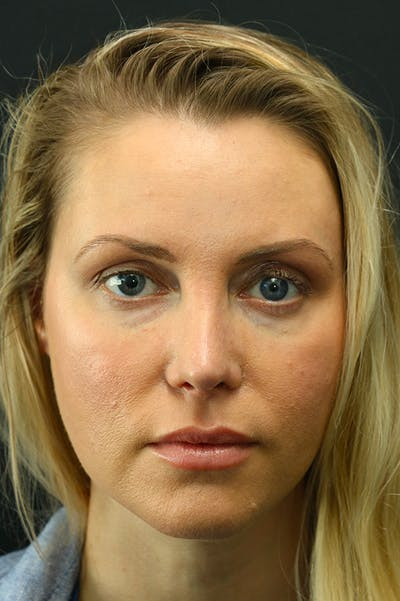 Revision Rhinoplasty Gallery - Patient 24222650 - Image 4