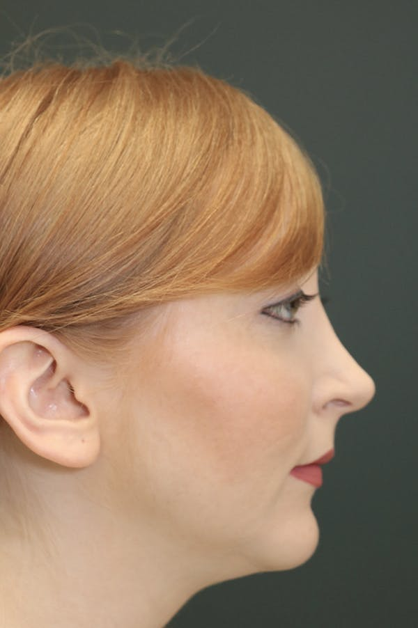 Revision Rhinoplasty Gallery - Patient 24222651 - Image 1