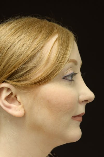 Revision Rhinoplasty Gallery - Patient 24222651 - Image 2