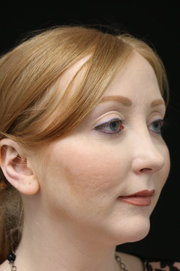 Revision Rhinoplasty Gallery - Patient 24222651 - Image 4