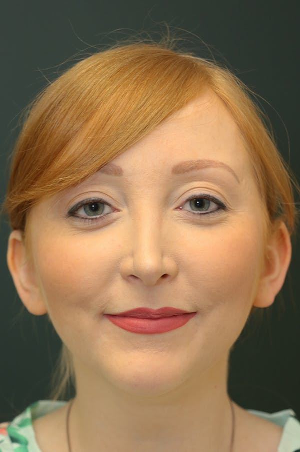 Revision Rhinoplasty Gallery - Patient 24222651 - Image 5