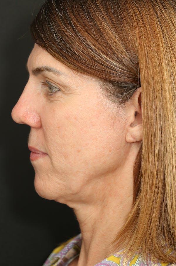 Facelift Gallery - Patient 24311064 - Image 3