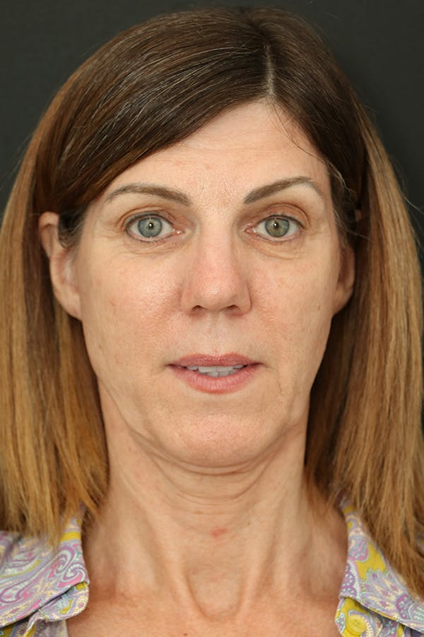 Facelift Gallery - Patient 24311064 - Image 5