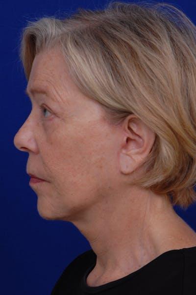 Facelift Gallery - Patient 24311065 - Image 4