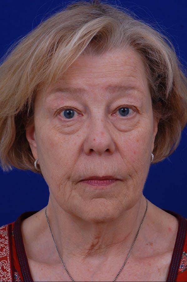 Facelift Gallery - Patient 24311065 - Image 5