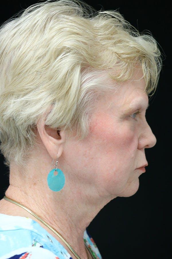 Facelift Gallery - Patient 24311066 - Image 3