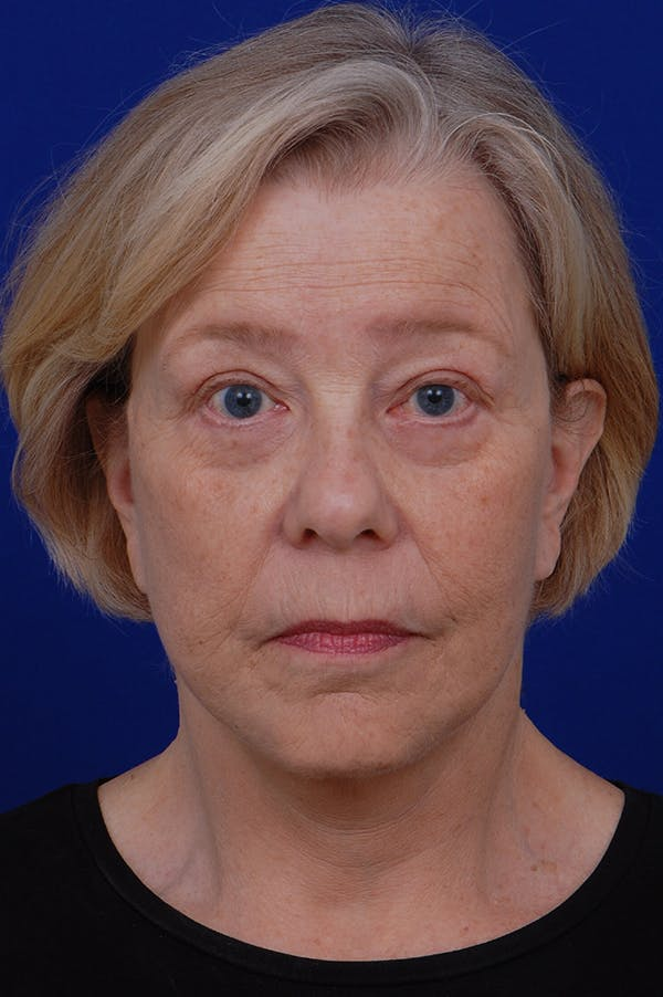 Facelift Gallery - Patient 24311065 - Image 6