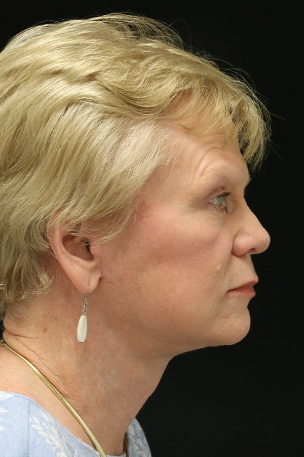 Facelift Gallery - Patient 24311066 - Image 4