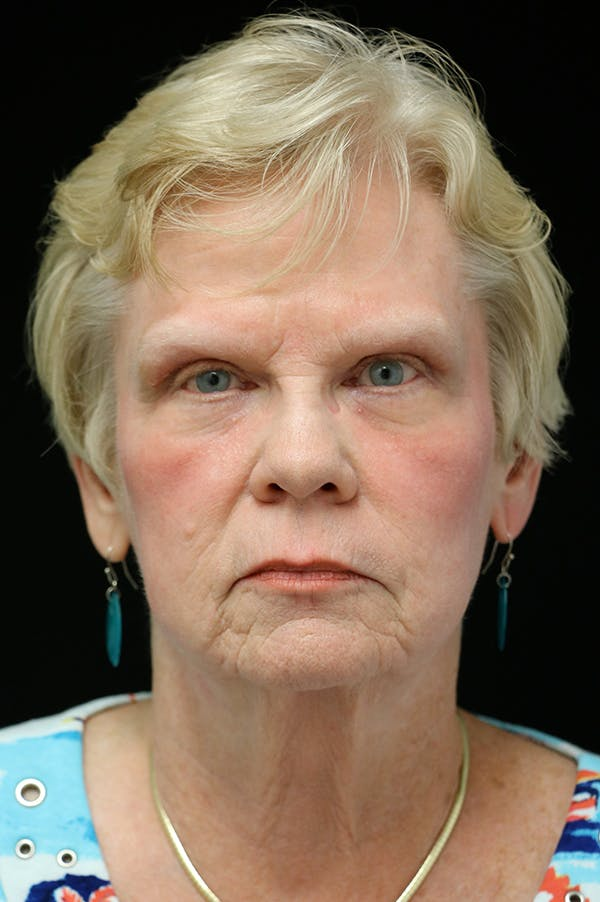 Facelift Gallery - Patient 24311066 - Image 5