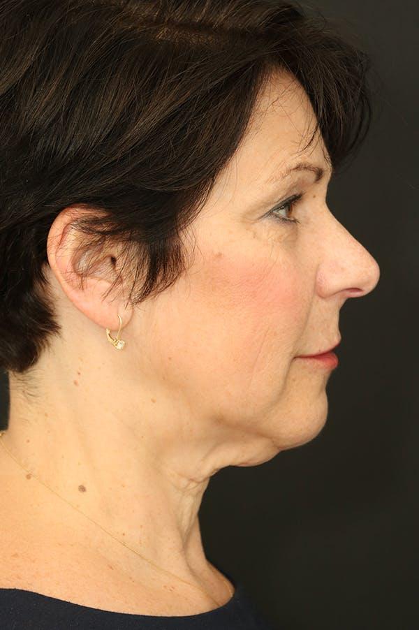 Facelift Gallery - Patient 24311068 - Image 3