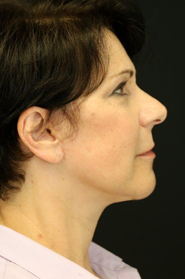 Facelift Gallery - Patient 24311068 - Image 4