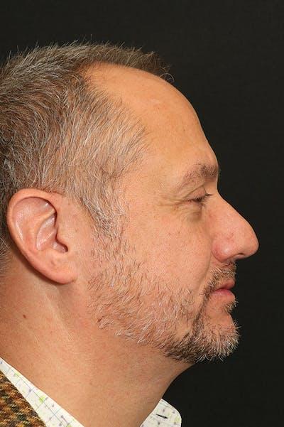Rhinoplasty Gallery - Patient 26211149 - Image 1