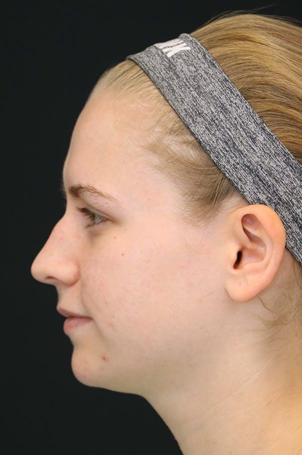 Rhinoplasty Gallery - Patient 26211152 - Image 1