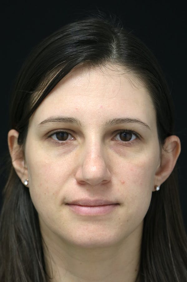 Rhinoplasty Gallery - Patient 26211153 - Image 5