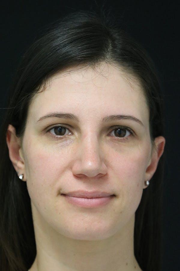 Rhinoplasty Gallery - Patient 26211153 - Image 6