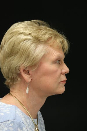 Facelift Incisions