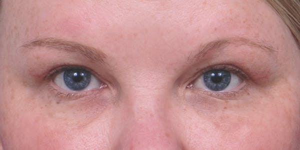 Eyelid Surgery Gallery - Patient 60806637 - Image 1