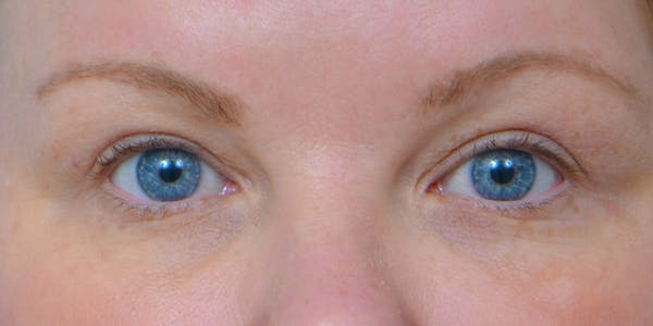 Eyelid Surgery Gallery - Patient 60806637 - Image 2