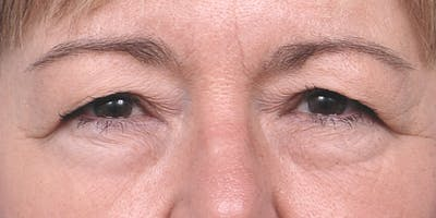Eyelid Surgery Gallery - Patient 60806638 - Image 1
