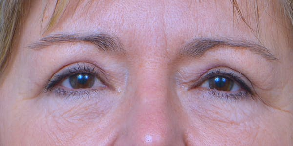 Eyelid Surgery Gallery - Patient 60806638 - Image 2