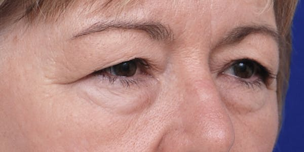Eyelid Surgery Gallery - Patient 60806638 - Image 3