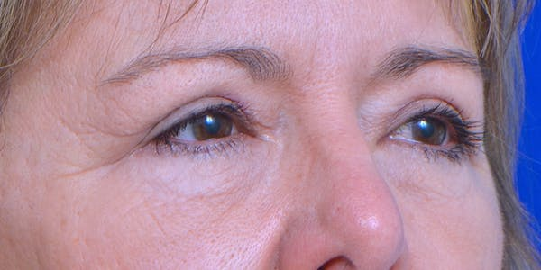 Eyelid Surgery Gallery - Patient 60806638 - Image 4