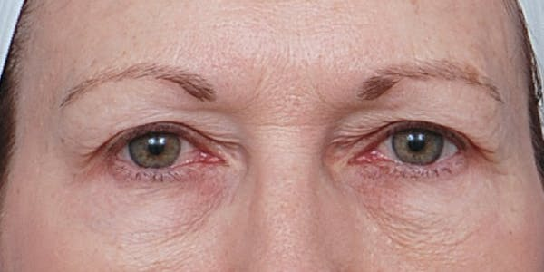 Eyelid Surgery Gallery - Patient 60806639 - Image 1