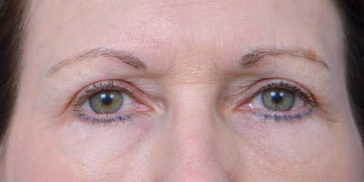 Eyelid Surgery Gallery - Patient 60806639 - Image 2