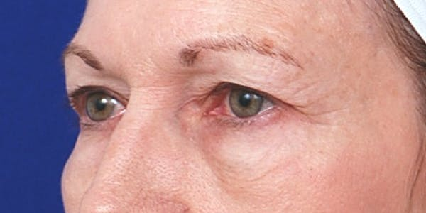 Eyelid Surgery Gallery - Patient 60806639 - Image 3